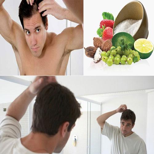 5 घरेलू उपचार,पुरूषों के बाल झडना बंद