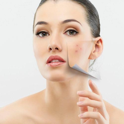 ब्युटी टिप्स:त्वचा के दाग-धब्बे से पाएं छुटकारा