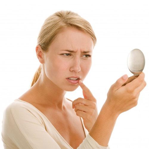 मुंह के छाले कारण और निवारण