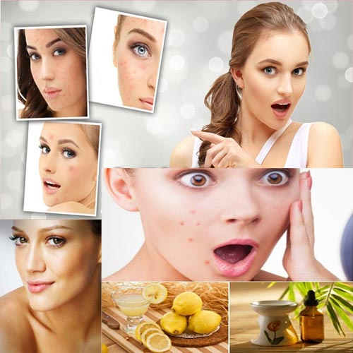 घरेलू उपचार चेहरा को बनाये बेदाग