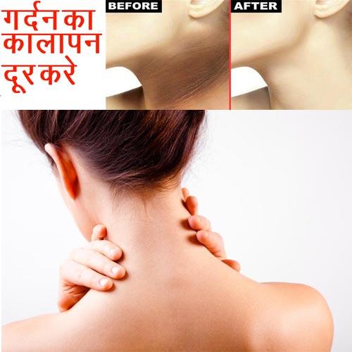 घरेलू उपचार:गर्दन के कालापन से छुटकारा