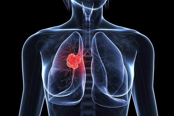 धूम्रपान न करने वालों को भी आखिर कैसे हो जाता है फेफड़ों का कैंसर!