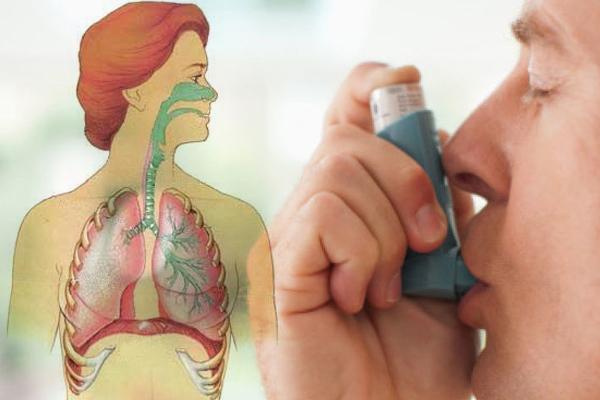 वायु नलिकाओं में सूजन से होता है दमा