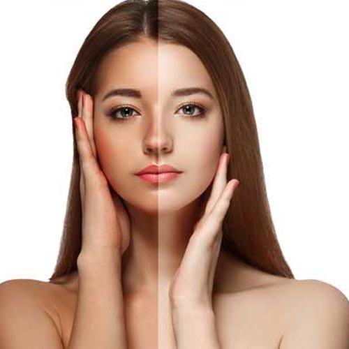 सनबर्न को दूर करने और त्वचा का कालापन हटाने के उपाय