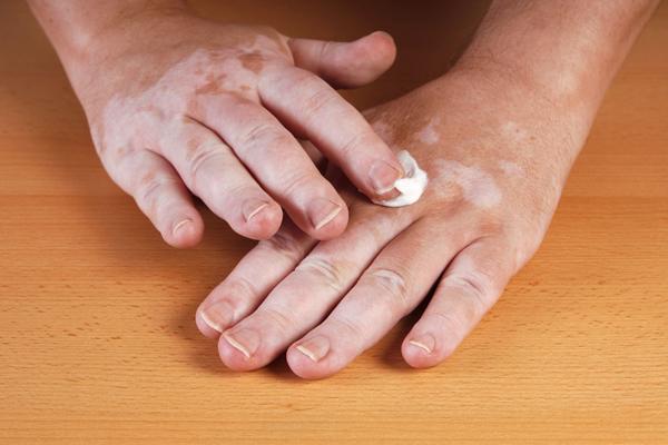 दुर्लभ विषनाग से मिली सफेद दाग की अचूक दवा