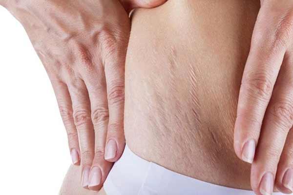 त्वचा पर पडे स्ट्रेच मार्क्स  हटाने के कुछ उपाय